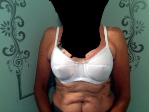 Basic bra, edited to remove identifying features as per client request